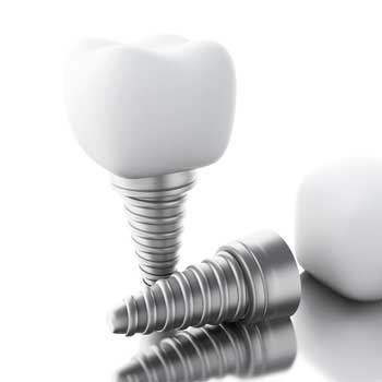 Dental-Implant-Dental-Services-in-Coral-Gables-350px
