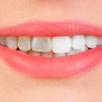 Teeth-Whitening-Dental-Services-in-Coral-Gables-New-350px